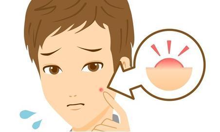 青春痘的原因有哪些